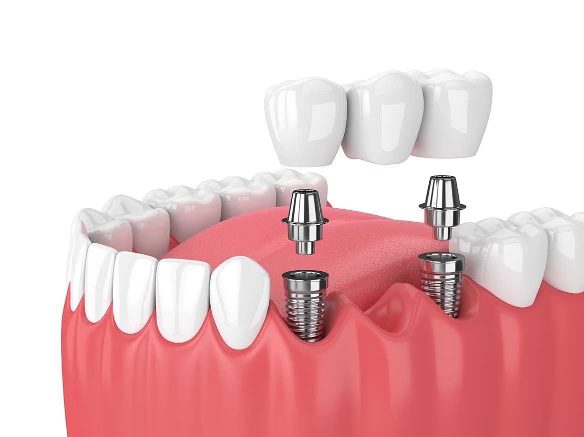 Implant dentaire : Qu'est ce qui change avec la dent ?